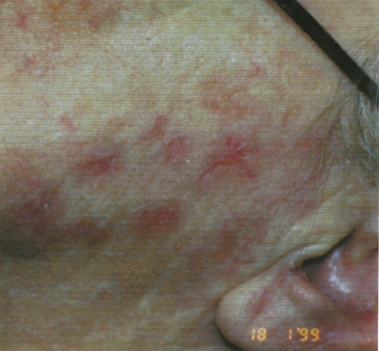 Shingles on Face2